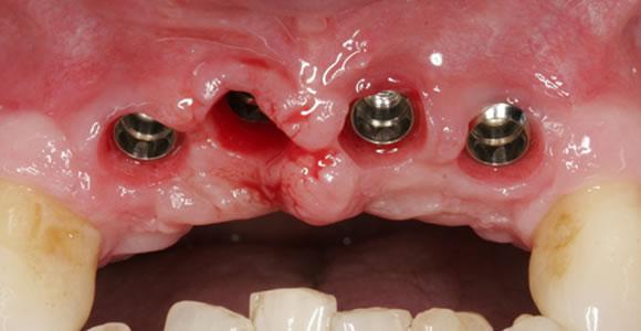 Vier durch Implantate ersetzte Frontzähne bei einem Parodontosegebiß