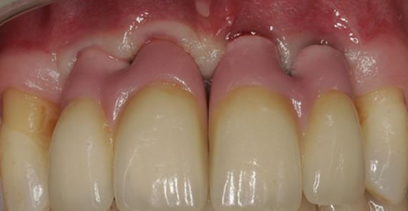 Eingezementierte Kronen mit rosafarbener Keramik als Zahnfleischersatz