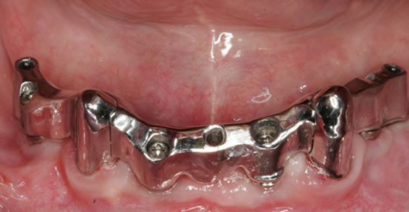 Eingegliederter Steg über die Zahnteleskope