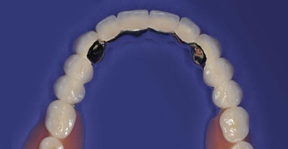 Fertiger Zahnersatz in der Aufsicht