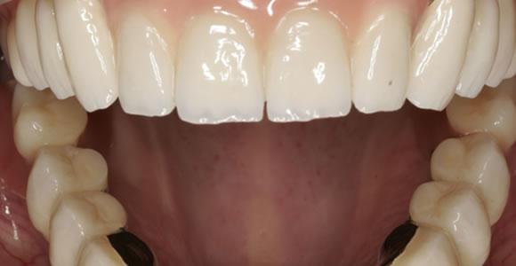 Eingesetzter Zahnersatz